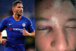 "Chelsea Player ""Drinkwater"" Breaks His Leg After Chatting Someone's Girlfriend – (Bruised By Thugs)"