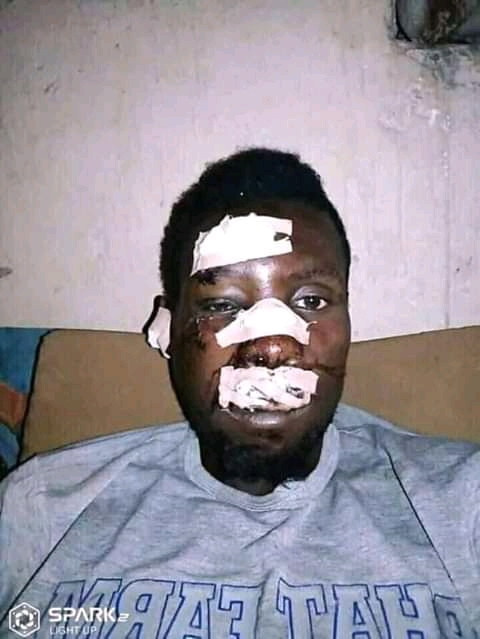 This Man Broke Nose While Celebrating Buhari 's Victory (see pic)